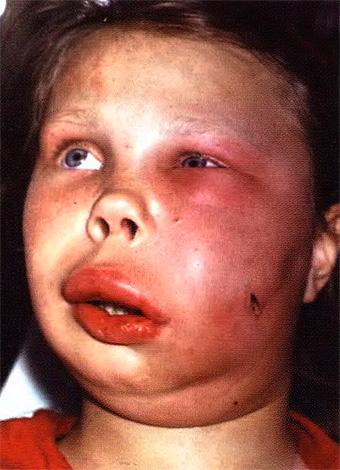 Флегмона - опасное заболевание, которое иногда приводит к летальному исходу.