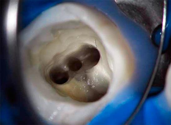 Как правило, лечение пульпита связано с удалением пульпы и зачисткой корневых каналов.