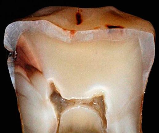 На срезе реального зуба хорошо видно, как со временем глубокий кариес распространяется до пульповой камеры.