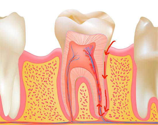 Инфицирование пульпы может произойти и без кариеса, например, при проникновении инфекции через верхушку корня (ретроградный пульпит).