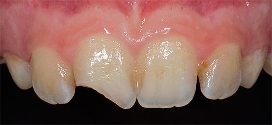 При сильном травмировании зуба нередко развивается травматический пульпит