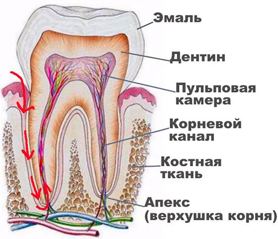 При ретроградном пульпите инфекция проникает внутрь зуба не через кариозную полость, а через верхушку корня.