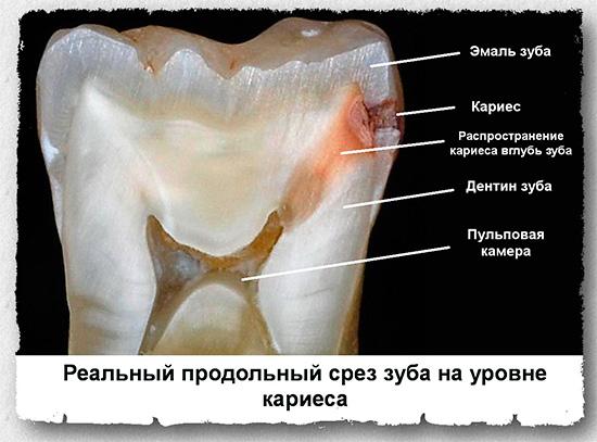 Продольный срез зуба, пораженного кариесом