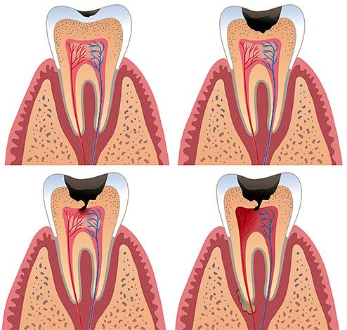 неприятный запах изо рта халитоз
