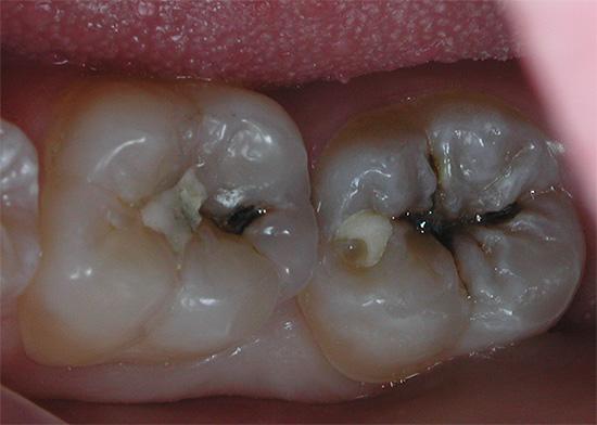 Жевательные зубы с глубоким кариесом - видны старые пломбы, которые будут удалены в ходе лечения.
