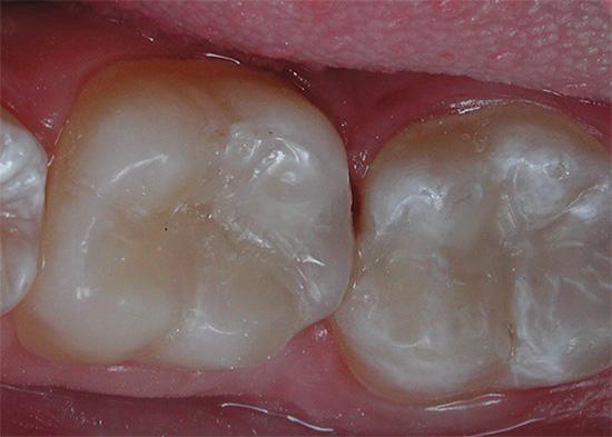 А так выглядят те же зубы уже после лечения.