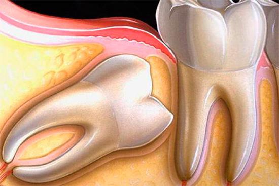 При таком расположении зуб мудрости будет вызывать сильные болевые ощущения.