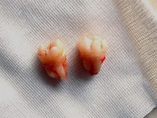 Сразу после хирургической процедуры может потребоваться прием обезболивающих препаратов.