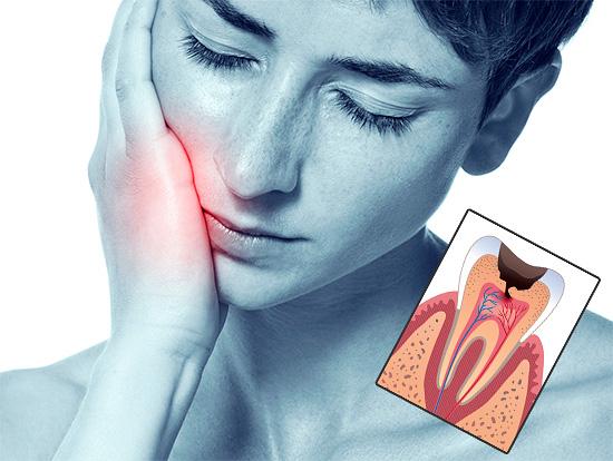 Рассмотрим современные методы лечения пульпита, а также основные этапы, из которых слагается процедура.
