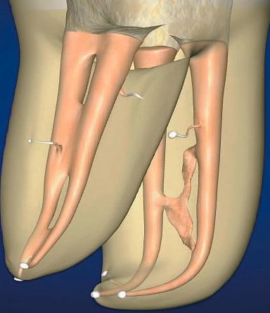 Если в корневых каналах сохранится очаг инфекции, то это может создать большие проблемы в будущем и с высокой вероятностью приведет к необходимости перелечивания зуба.