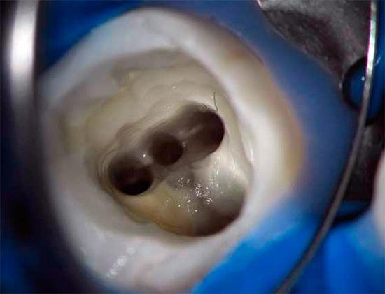 Очень важное значение при лечении пульпита имеет качественная очистка зубных каналов от остатков пульпы и инфекции.