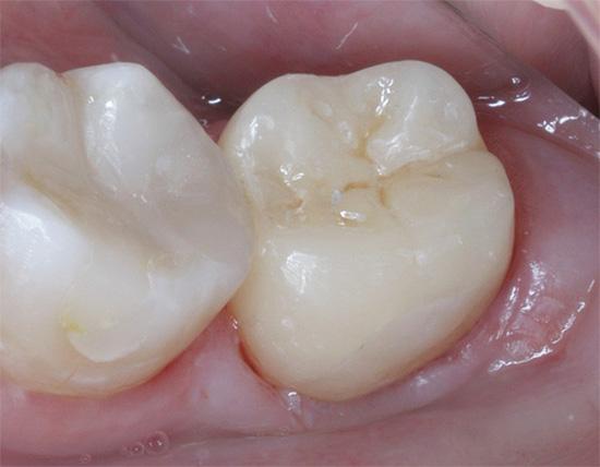 А так выглядит тот же зуб уже после лечения.