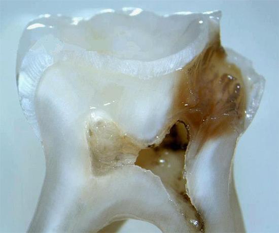 На срезе видно, что кариозная полость подошла вплотную к пульповой камере зуба.