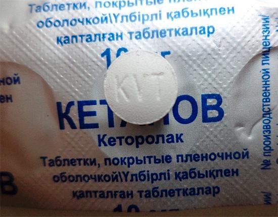 Попытки регулярно запивать зубную боль обезболивающими таблетками могут закончиться весьма плачевно...