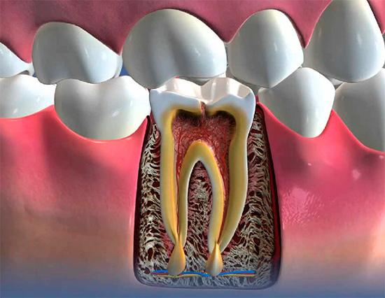 На картинке показан пример периодонтита - гнойное воспаление на корне зуба.