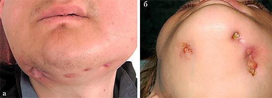 А на этой фотографии показан пример последствий одонтогенного остеомиелита.