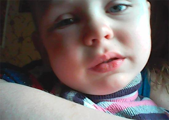 Иногда лишь сильная боль у ребенка, припухлость щеки и температура заставляют родителей вести малыша к стоматологу.