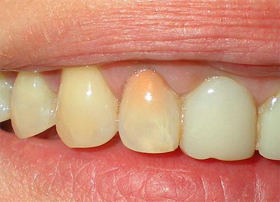 После лечения пульпита резорцин-формалиновым методом зуб приобретает розовую или даже красноватую окраску.