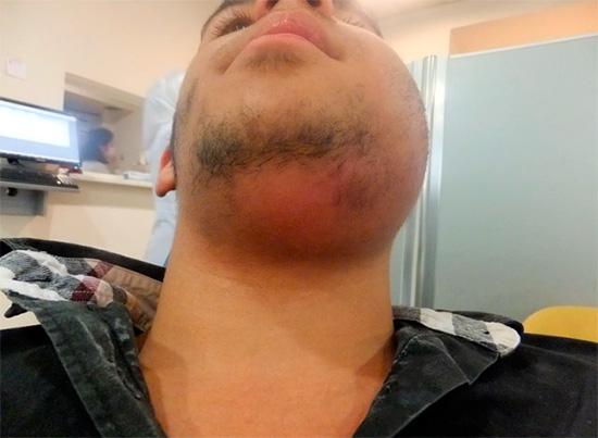 На фото показан пример острого разлитого гнойного воспаления