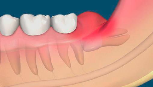 На картинке наглядно показано, как десневой капюшон накрывает зуб мудрости