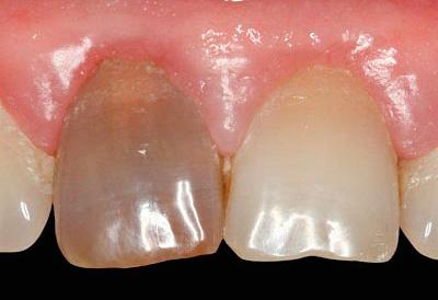Так выглядит зуб через некоторое время после лечения пульпита с применением резорцин-формалиновой пасты.