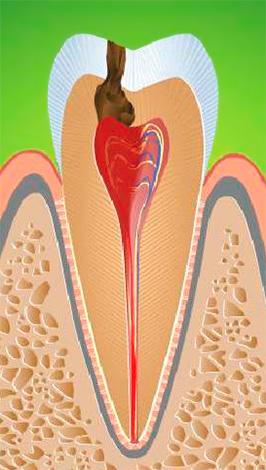 При хроническом фиброзном пульпите происходит постепенное замещение нервных волокон на соединительную ткань, что ведет к снижению чувствительности пульпы к различным раздражителям.