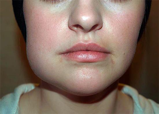 Хроническая форма пульпита может однажды перейти в острый гнойный процесс, что нередко сопровождается различными тяжелыми осложнениями.