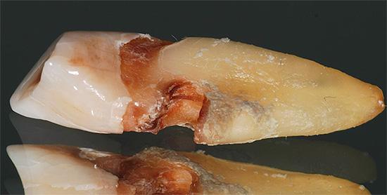 На фото показана глубокая кариозная полость на корне зуба