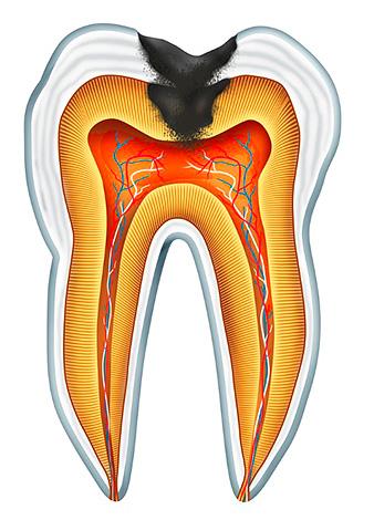 Если при глубоком кариесе бактерии доберутся до пульповой камеры зуба, то сосудисто-нервный пучок неминуемо воспалится с возможным последующим гнойным распадом.