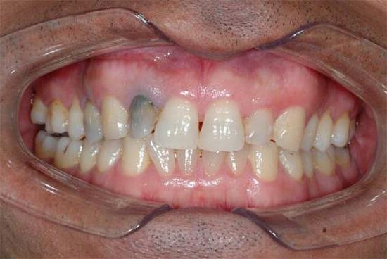 Показанный на фото серый оттенок зуба может свидетельствовать о хроническом гангренозном пульпите.