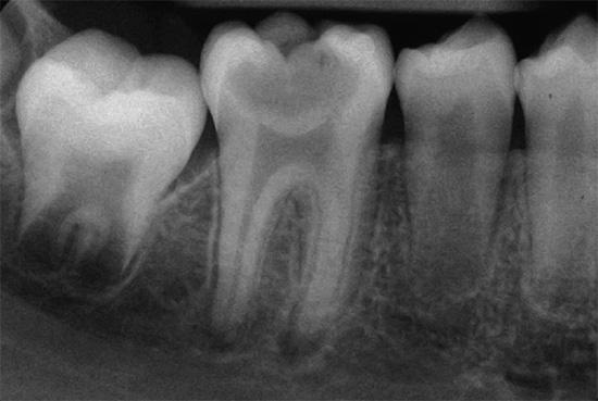 Рентгенографические снимки позволяют выявить скрытые патологии в зубе и окружающих его тканях, а также оценить длину и форму корневых каналов.