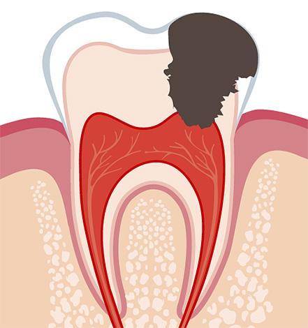 Пульпит развивается в том случае, когда инфекция добирается до зубного нерва, приводя к его воспалению.