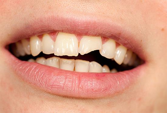 При механических повреждениях зубов может развиваться травматический пульпит.