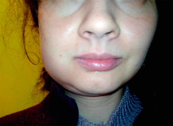 Метамизол натрия не обладает выраженными противовоспалительными свойствами, так что на лечебный эффект от него не следует рассчитывать.
