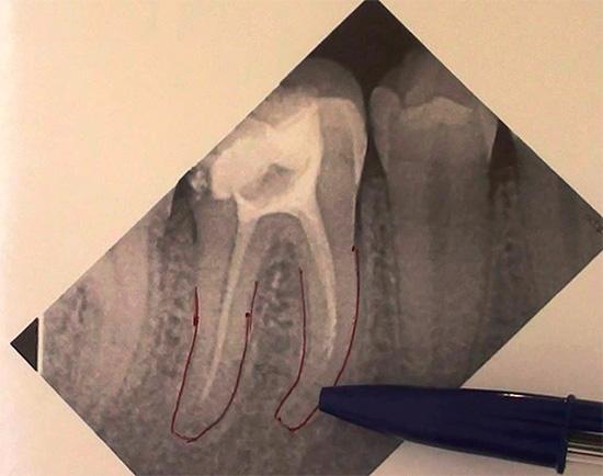 Еще один рентгеновский снимок, где видно, что один зубной канал не запломбирован до верхушки корня.