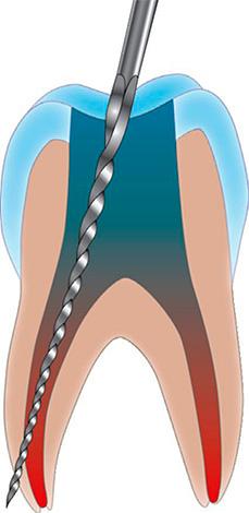 Частой причиной постпломбировочных болей в зубе, в котором удален нерв, является перфорация стенки корневого канала.