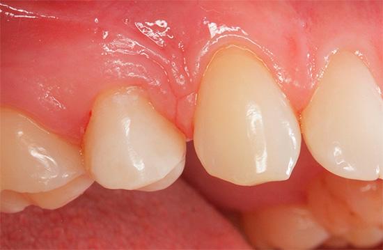 Вследствие аллергии на пломбировочный материал, десна рядом с мертвым зубом может быть постоянно воспалена и болеть.