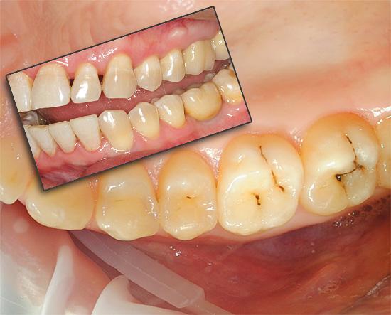 Зубы могут болеть по самым разным причинам, и далее мы попробуем разобраться, что делать в той или иной ситуации для облегчения страданий.