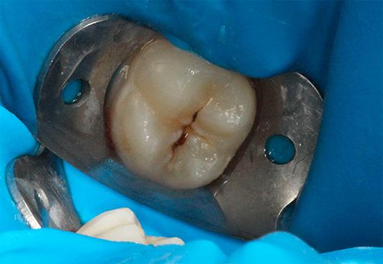 Если пульпа не поражена, то кариозный зуб обычно лечится в одно посещение.