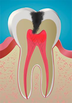При пульпите происходит инфицирование сосудисто-нервного пучка и его воспаление, что сопровождается весьма сильными болями.