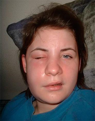 Одонтогенная флегмона - тяжелое осложнение, изредка возникающее после удаления зуба мудрости.