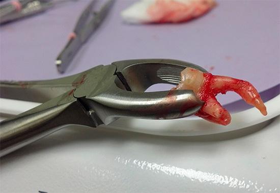 Существует несколько способов, позволяющих ускорить процесс заживления десны после удаления зуба...
