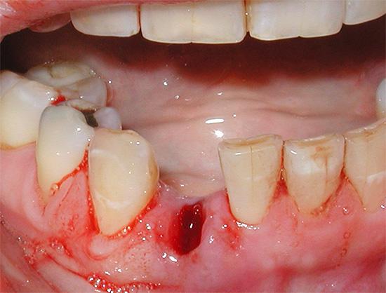 Одна из проблем, с которой сталкиваются пациенты сразу после удаления зуба, - это длительная кровоточивость лунки.