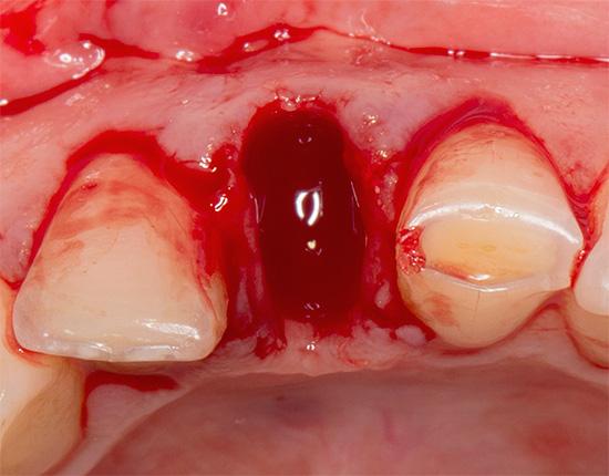 Длительное луночковое кровотечение всегда имеет свои причины, которые желательно было выявить еще до удаления зуба.