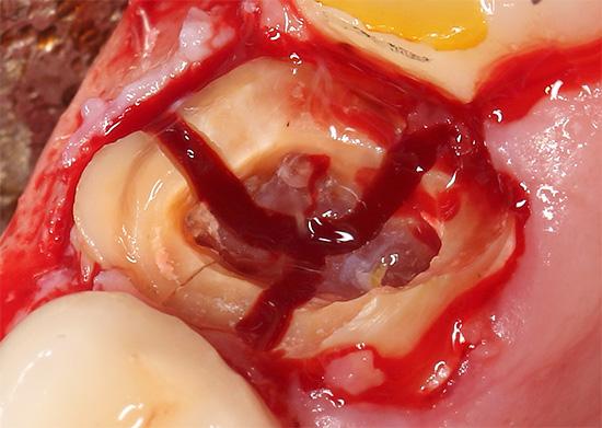 Зуб распилен на три части для упрощения извлечения корней