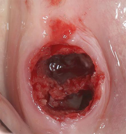 При нагноении зубной лунки развивается альвеолит