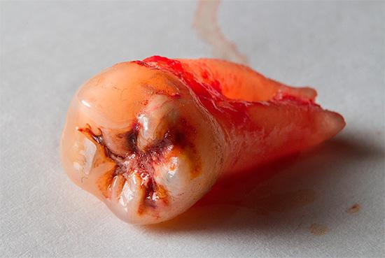 Нередко развитие осложнений связано с высокой травматичностью процедуры, например, при не очень профессиональном удалении зуба мудрости.