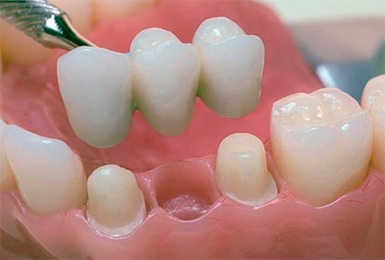 Такой вот мостовидный протез позволяет восстановить функции утраченного зуба и предотвратить нарушение прикуса в будущем.