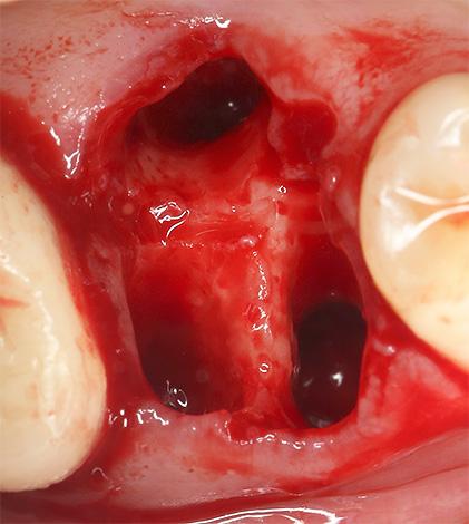 Кровотечение из лунки после удаления зуба иногда бывает очень длительным, вплоть до нескольких суток подряд.