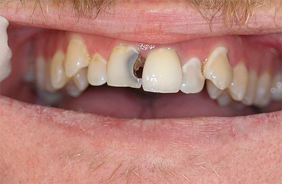 Если при гнойном пульпите длительно оттягивать визит к стоматологу, то боль иногда действительно может исчезнуть, однако ни к чему хорошему без лечения это в будущем не приведет.